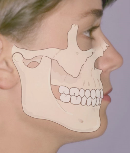 OrthoED - Evaluation of the face 1