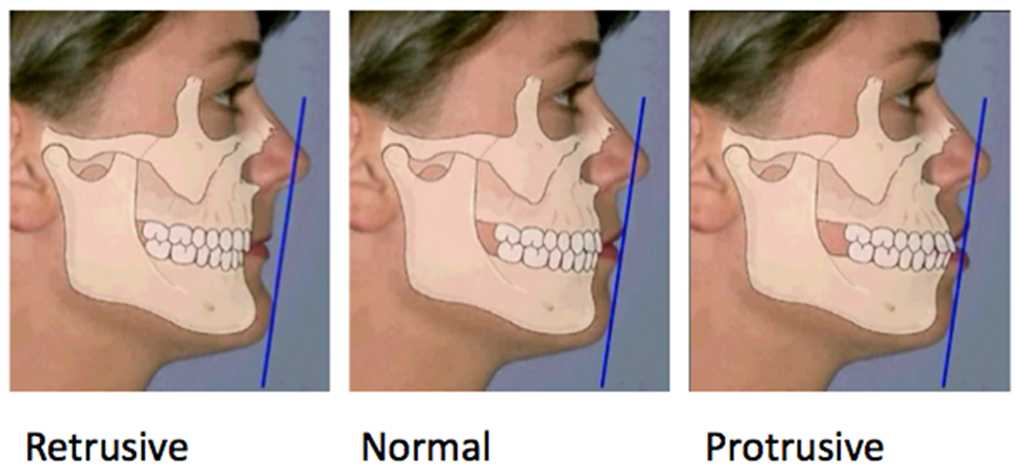 OrthoED - Evaluation of the face 13