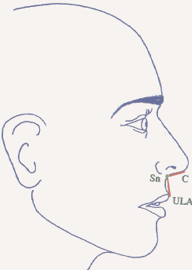 OrthoED - Evaluation of the face 14