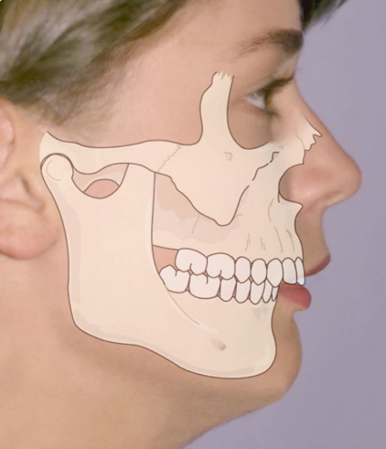 OrthoED - Evaluation of the face 2
