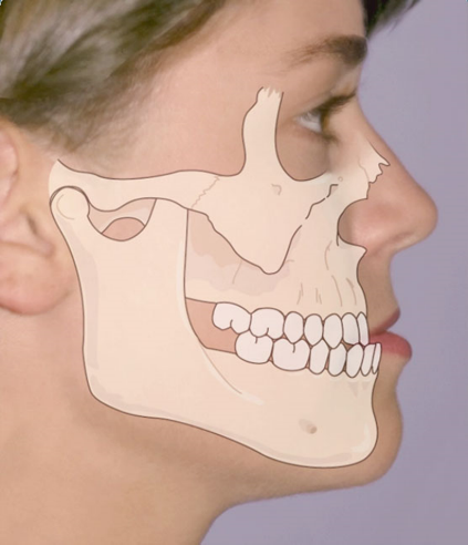 OrthoED - Evaluation of the face 3