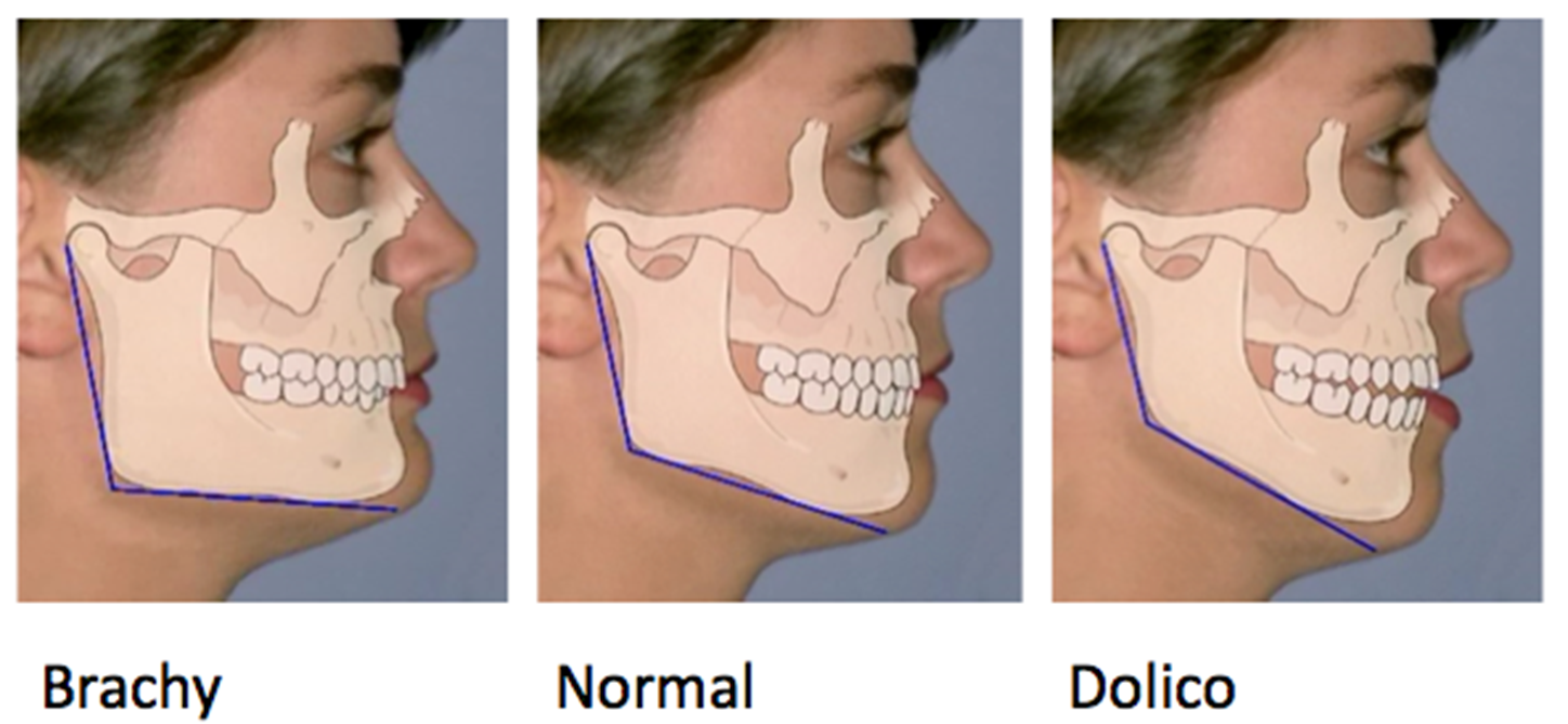 OrthoED - Evaluation of the face 4