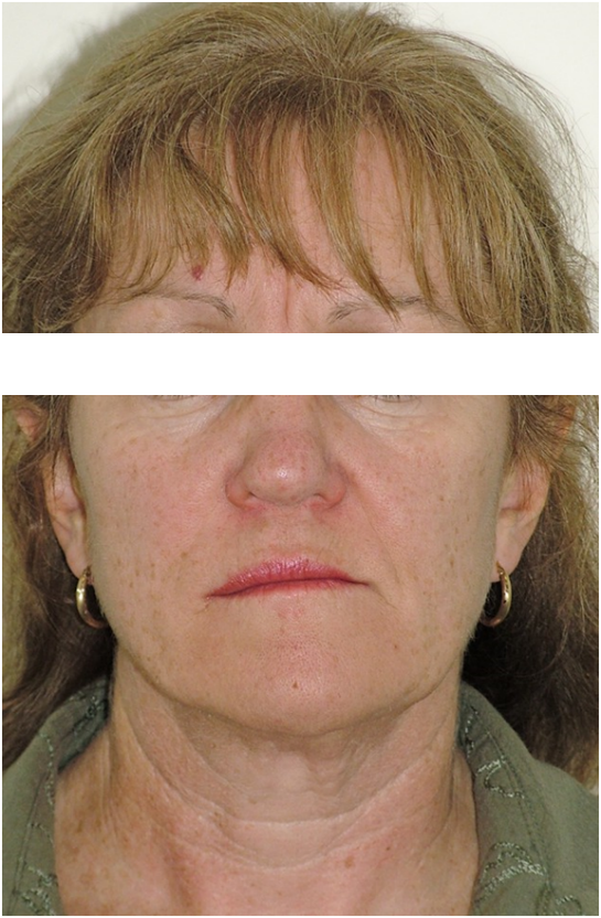 OrthoED---Evaluation-of-the-face-5