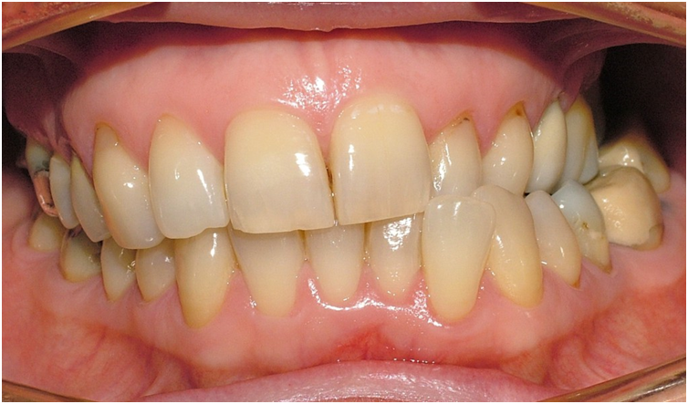 OrthoED - Evaluation of the face 6